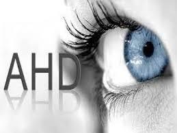 AHD Kamera